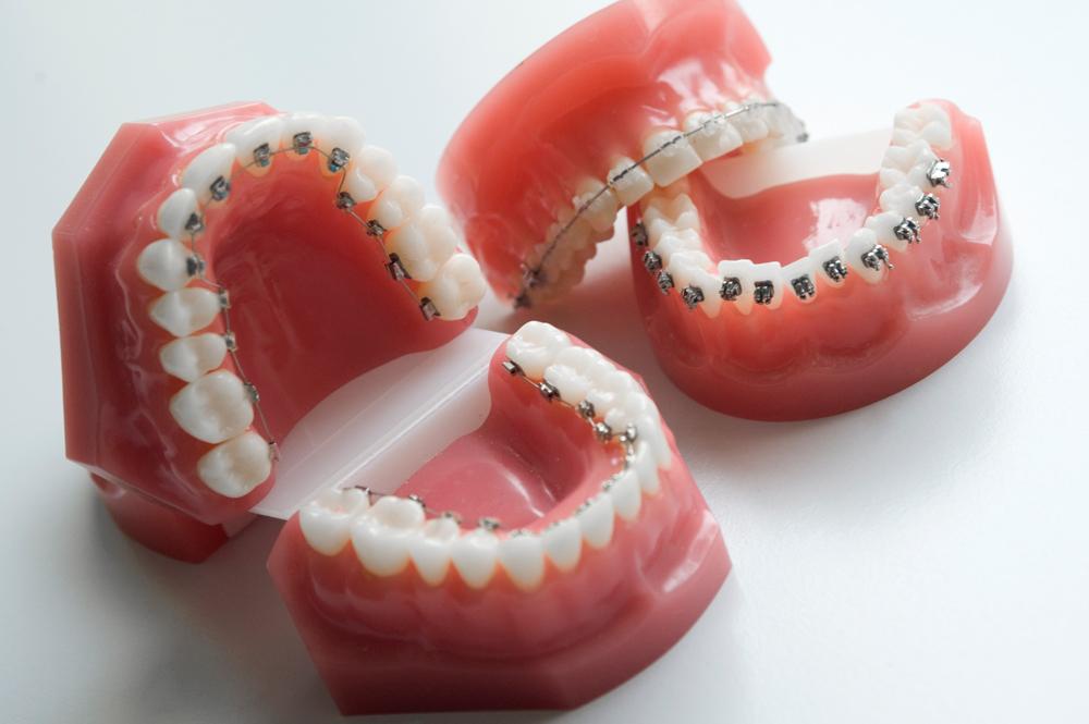ortodontia fissa
