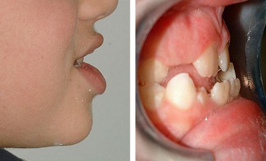 Ortodonzia Funzionale - Prima