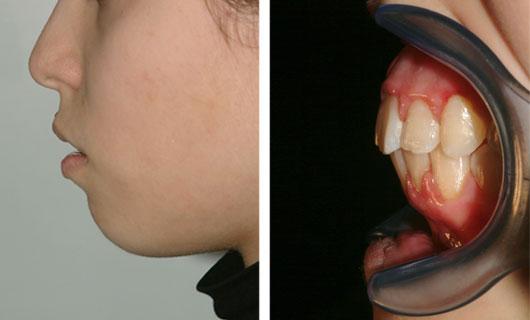 Ortodonzia Funzionale - Dopo