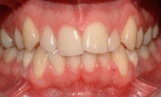 Ortodonzia Linguale - Prima