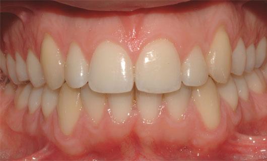 Ortodonzia Linguale - Dopo