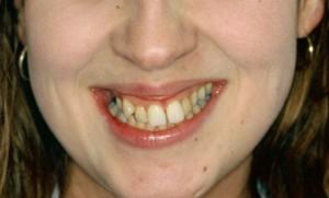 Ortodonzia Fissa - Prima