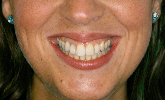 Ortodonzia Fissa - Dopo